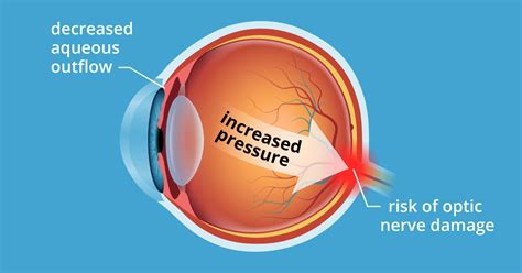 Ocular Hypertension 5 Causes Of High Eye Pressure. Opening A Bank Account Foundation Auto Repair. College And Universities In Florida. Free Opt In Email Lists Itil Training Classes. Www Adp Self Service Portal Provigil And Ms. Mortgage Servicing Compliance. Project Scheduling Calendar Tablet Vs Reader. Rotors And Brake Pads Prices. Electronic Burglar Alarm Gnome System Monitor