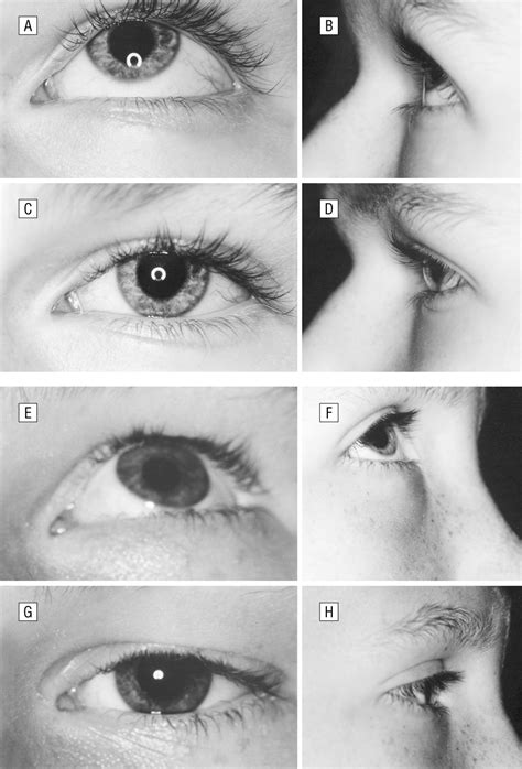 effect  anterior transposition   inferior oblique muscle   palpebral fissure
