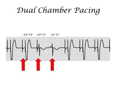 pacing by hussam tayeb smacc ecg workshop 2014