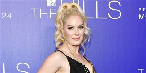 Heidi Montag Opens About Her Plastic Surgeries