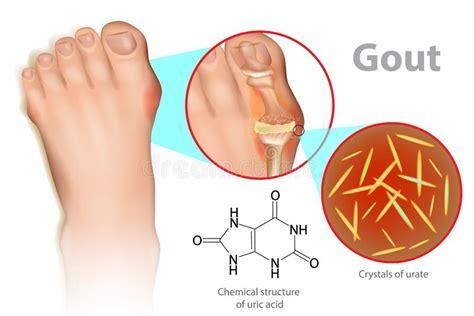 gout stock vector illustration  deposit tumefaction