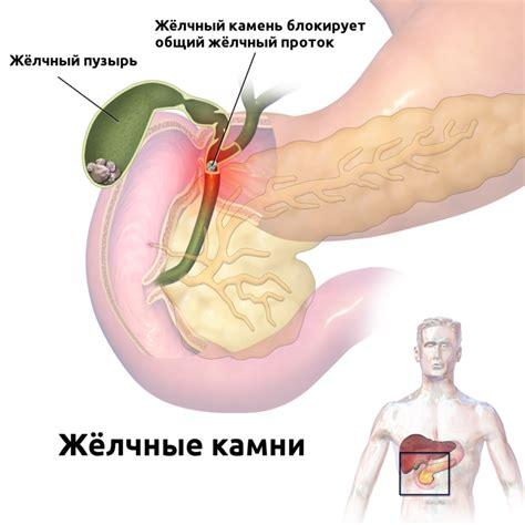 Acute pancreatitis - alvleesklierontsteking
