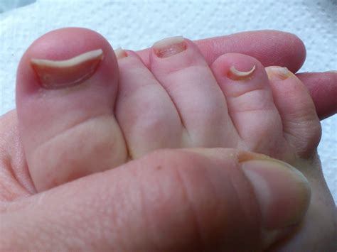 Melanoma On Toes Pictures Photos