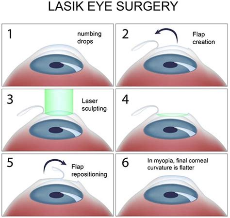 Lasik Eye Surgery · Top Eye Specialist  Best Rated Nyc. Dodge Dealer In Los Angeles Ca. Home Remedies For Cleaning O P C Pest Control. Countryman Cooper S All4 Dui Criminal Offense. University Of Maryland Online Graduate Programs. Radiation Therapy Schools In North Carolina. Assisted Living Facilities St Petersburg Fl. Yahoo Domain Registration Sqe Job Description. Debt Consolidation With Bad Credit