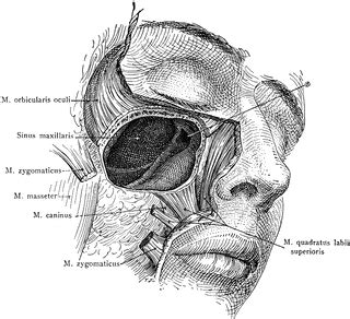 dissection   maxillary sinus clipart