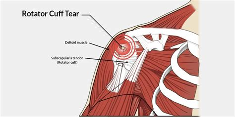 Illinois Workers Comp Rotator Cuff Injuries