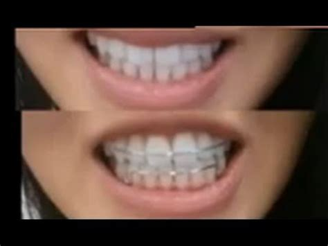 retainers   clear  metal youtube