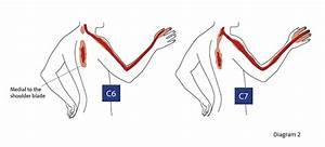 Tennis Elbow Symptoms Diagram