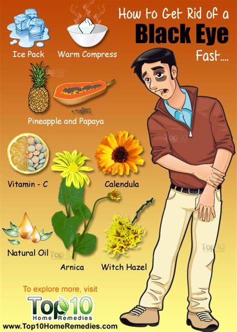 rid   black eye fast top  home remedies