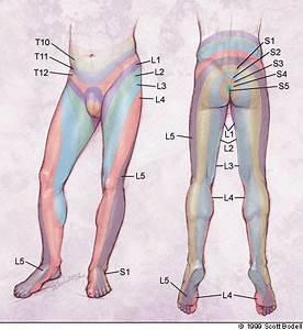 hernia l2 l3 symptomen