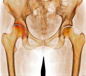 Боли в области тазобедренного сустава лечение