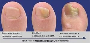 Лечения грибок ногтя на руках