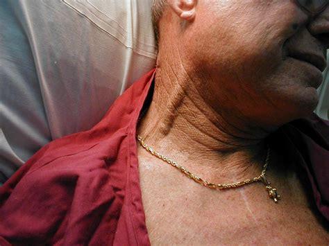 External Jugular Vein Causes Symptoms Treatment