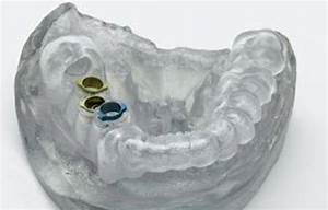 New Niche For 3d Printers In Dentistry