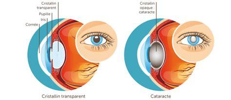 cataracte cabinet d ophtalmologie des flandres