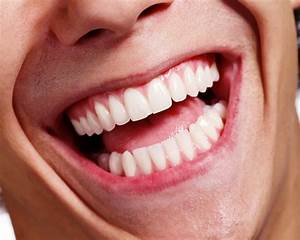 5 Things You Need To Know About Dental Bonding