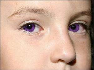 Alexandria's Genesis, a.k.a violet eyes (a genetic ...