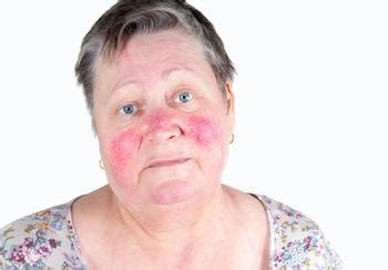 face  red  common skin problems