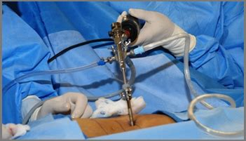Endoscopic Spine Surgery Hospital In Ahmedabad, Endoscopic. Direct Deposit Payroll Santa Monica Therapist. Austin Tx Home Insurance Payday Loans Spokane. Metal On Metal Hip Replacement Problems. Alcohol Addiction Treatment Florida. How Can I Get My Teeth White. Pierce College Washington Lpn Degree Programs. Greater Building Society 401k Vs Rollover Ira. Christian Fidelity Life Insurance