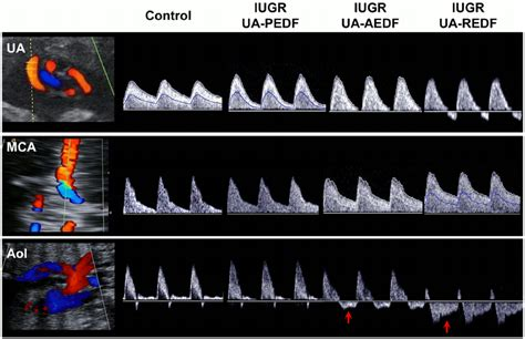 Doppler Ultrasound Data Of The Study Individuals. Doppler