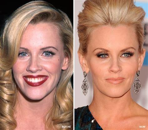 celebrities     botox  hollywood