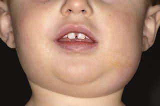Mumps Home Remedies