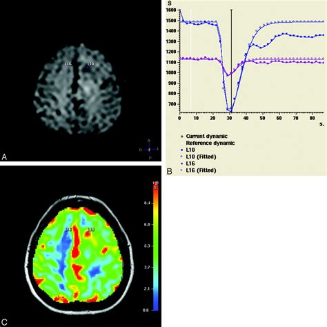 cerebral blood volume measurements  perfusion weighted