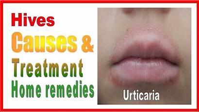 Hives Urticaria Treatment Remedies Cure