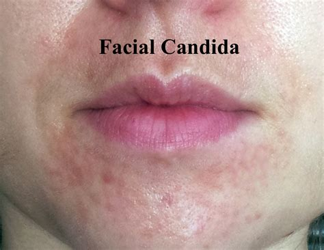 Candida Of The Skin Facial Yeast And How It Can Occur