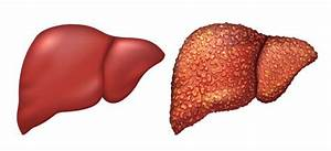 Diagram Liver Damage