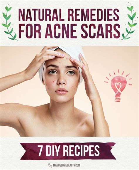 thayers toner how to get rid of acne scars fast the 20 best treatments
