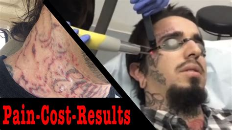 truth  laser tattoo removal pain cost
