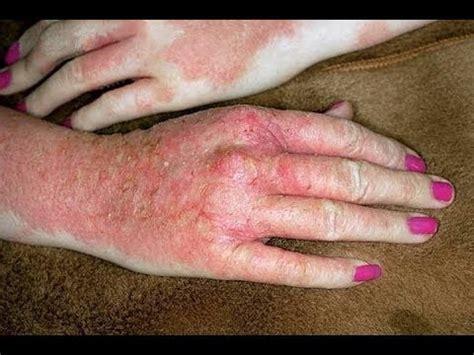 Dyshidrotic Eczema Home Remedies by Eczema Home Treatment For Dyshidrotic Eczema