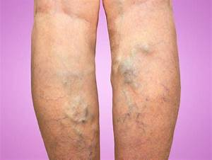Being Tall Tied To Higher Odds For Varicose Veins