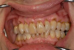 How to deal with teeth abrasion? | News | Dentagama