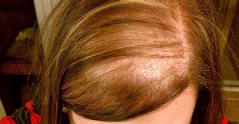 alopecia difusa causas  tratamientos