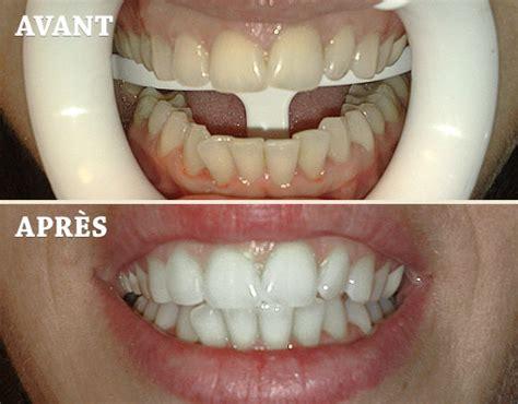 blanchiment dentaire quels sont les risques