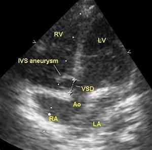 echokardiographie ivs