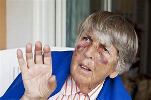 Elder Abuse  Signs And Symptoms You Can Identify