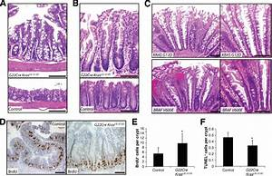 Mutant Kras Promotes Hyperplasia And Alters