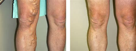 Varicose Vein Treatment  Lakeshore Vein & Aesthetics. Criminal Lawyer In Houston Tx. Internet Tax Freedom Act York College Majors. Colleges With Hospitality Majors. How Many Years Of School To Become A Pediatric Nurse. Gutters Fort Lauderdale Online Degree Florida. Neighborhood Pet Clinic Website Feedback Form. Charter Oak Gymnastics Maryland Storage Units. Employee Benefit Packages Rcc Online Classes