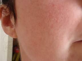 Lupus Rash On Face