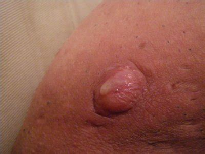 bouton al interieur de la paupiere de maladie de verneuil 68 de maladie de verneuil 68 skyrock