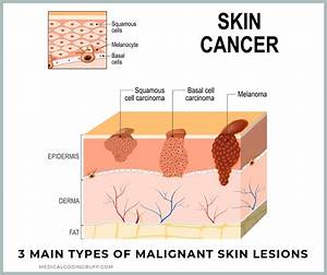Skin Lesions And Biopsy Procedures  Making A Diagnosis