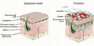 Чистотел лечение псориаза головы