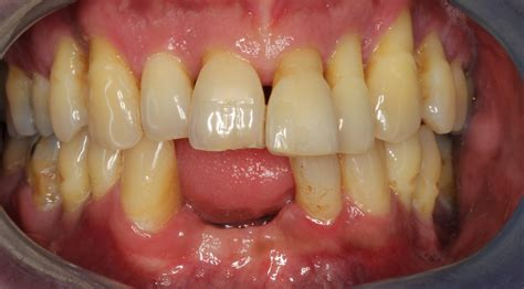 sinus infections related toothache tooth infection dental caused implants