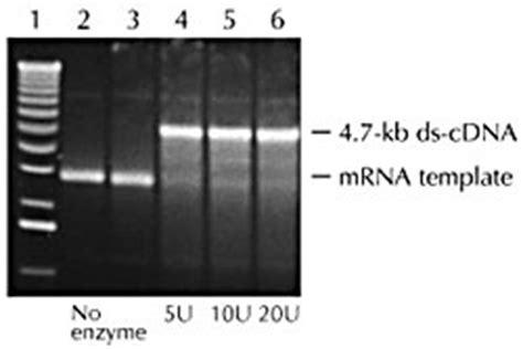 MMLV Reverse Transcriptase - SÍNTESIS CDNA - 4. RT-PCR ...
