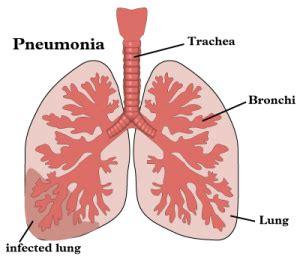 obat pneumonia radang paru paru  ibu hamil