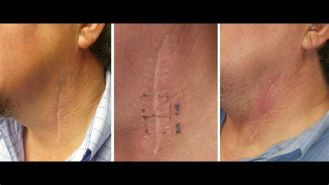 Deep FX CO2 laser treatment of neck scar by Dr. Joe Niamtu