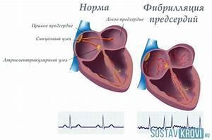 Вольтарен таблетки и простата